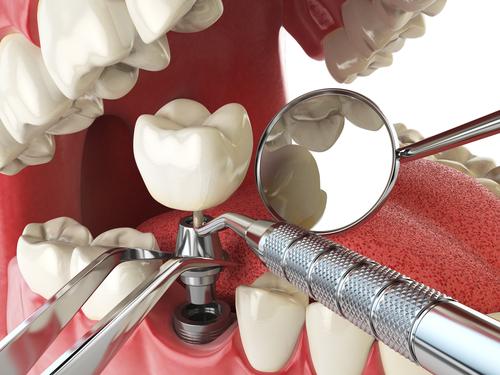 implant-dentaire-une-prothese-haut-de-gamme-pour-poser-la-couronne
